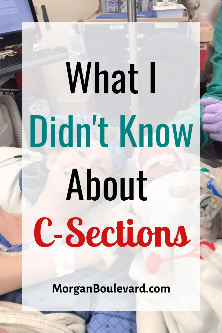 what i didn't know about c-sections